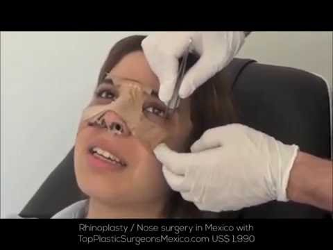 COST OF RHINOPLASTY IN MEXICO US$1,990 – TopPlasticSurgeonsMexico.com