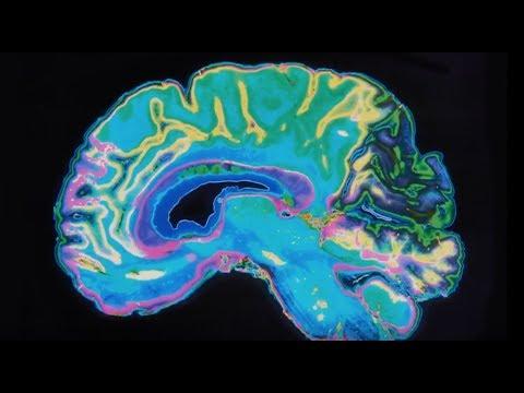 UT Austin & Dell Medical School: Leading A Brain Revolution
