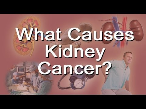What Causes Kidney Cancer?