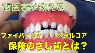 【横浜戸塚 内藤歯科】差し歯の治療法の説明