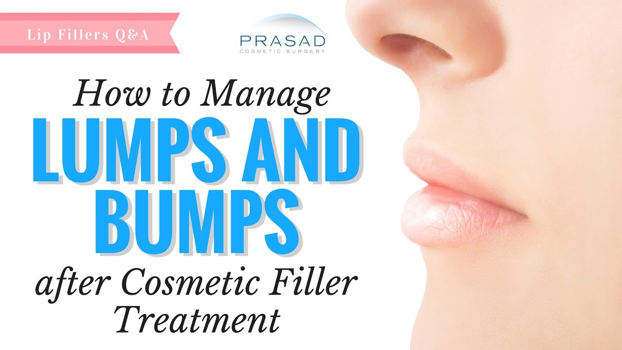 How to treat bumps from injections 79