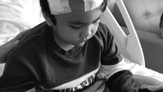Bagaimana mekanisme terjadinya Epilepsi? [Patofisiologi Epilepsi Part 1].