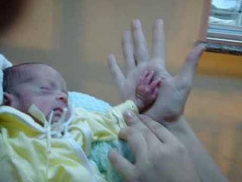 bebê prematuro - YouTube