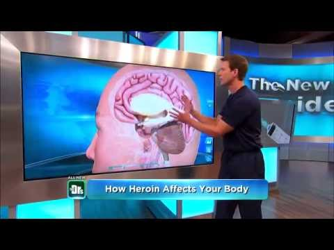 what-are-the-side-effects-of-heroin-&-natural-heroin-addiction-treatment!