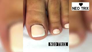 Ugly Feet And Toenails Transformation -  Best French Pedicure Before And After Toe Nail Art Tutoria