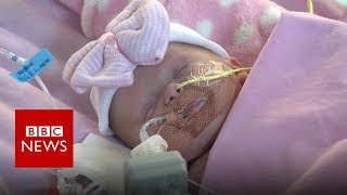 How a baby born with her heart outside her body has survived after ...