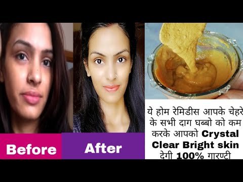 Best Home Remedies For  Skin Whitening Brightening In Just 15 Days I Give You 100% Guarantee {Hindi}