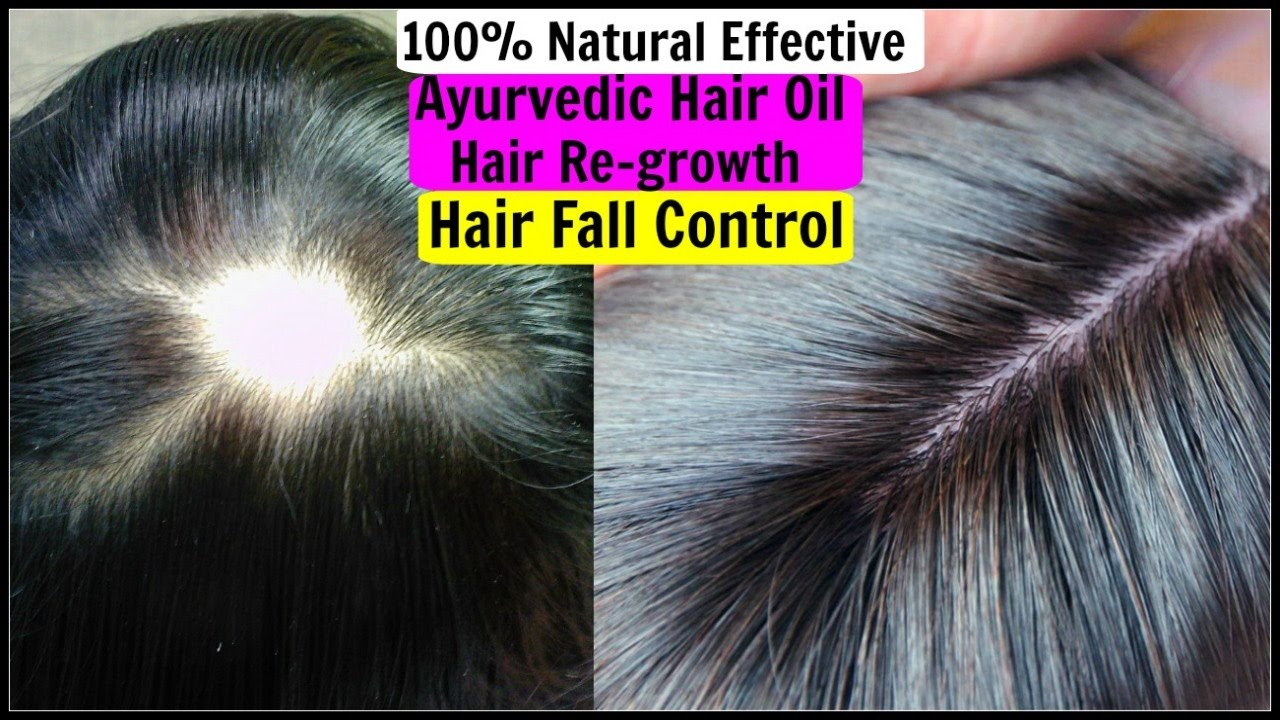 Natural Ways To Make Hair Regrow