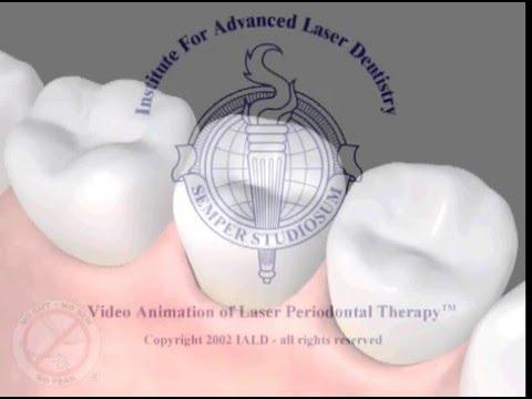LANAP Protocol - laser gum disease treatment