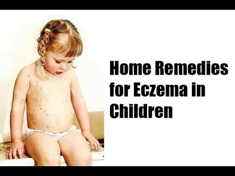 How to Get Rid of Eczema : How to Treat Eczema in Children