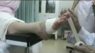 母趾種子骨障害のテーピング (足の親指の付け根の着地面の痛み)