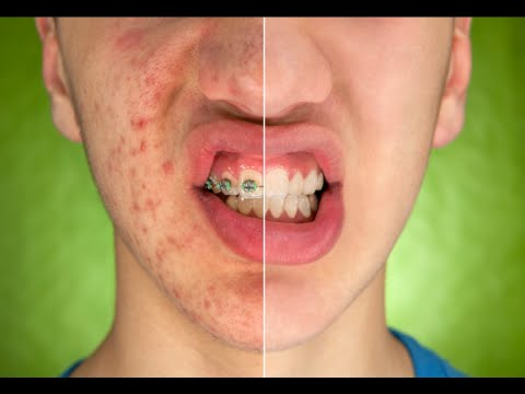 hqdefault - Ways To Avoid Pimples