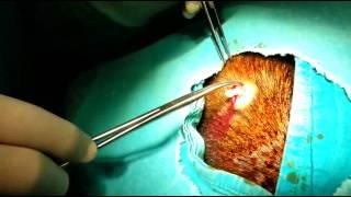 sebase kist ameliyati grntleri op dr seluk arslan