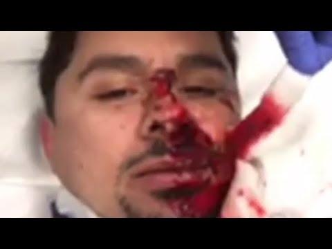 Larry Hernandez sufre grave accidente 12/29