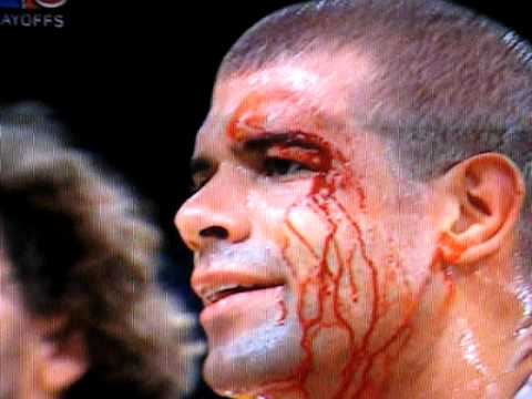 Rockets Shane Battier jacked up & bloodied by Lakers Sasha Vujacic
