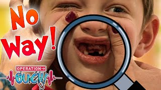 I Knocked Out my Teeth!    Science for Kids   Full Episodes   Operation Ouch