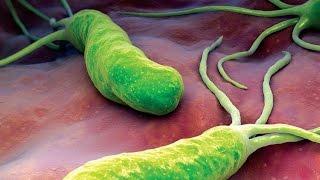 Vi khuẩn Hp là gì, triệu chứng và nguy cơ khi nhiễm vi khuẩn Hp