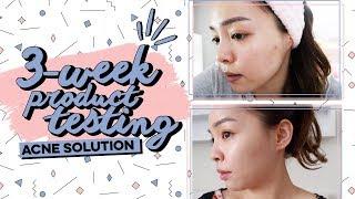 Hôm Nay Trinh Thử ♡ Trị Mụn Trong 3 Tuần ♡ 3 Week Product Testing ♡ TrinhPham