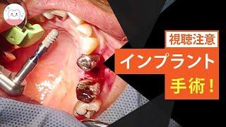 重度の歯周炎‼︎抜歯をしてインプラント治療 Advanced Periodontal Disease!  Take Dental Implant