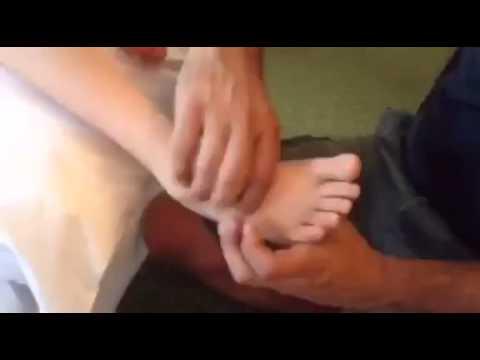 Orthopedic Reflexology Demonstration Cerebral Palsy