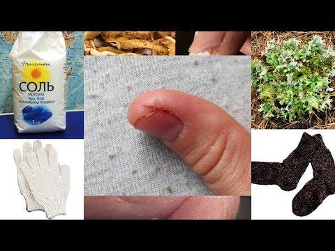 Трещины 💥 на пальцах 🖐 рук лечим солью. Холодовой дерматит (dermatitis).