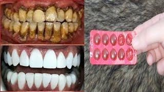قل وداعا للطبيب الوصفة الربانية لتبييض الأسنان في أقل من دقيقتين ,اسنان بيضاء كالؤلؤ