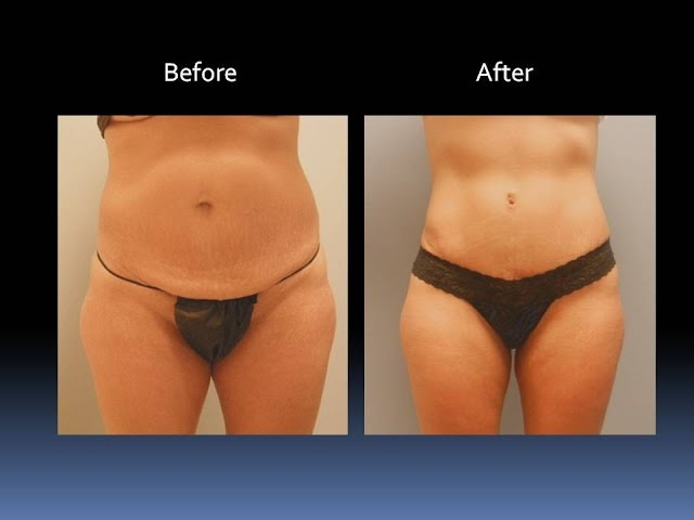 NEW Tummy Tuck Before and After by Dr. Emily Pollard