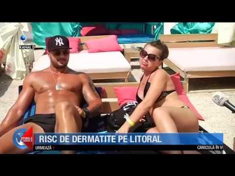 Stirile Kanal D (02.08.2018) - Risc de dermatite pe litoral! Editie COMPLETA