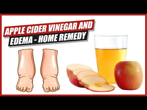 Apple Cider Vinegar and Edema - Home Remedy