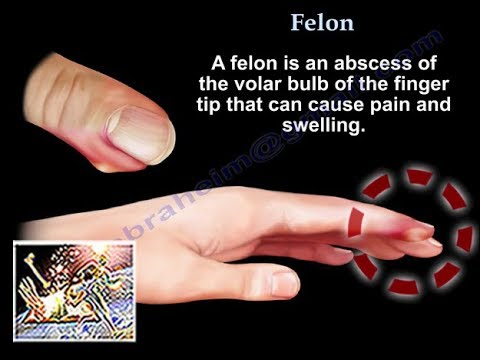 Felon - Everything You Need To Know - Dr  Nabil Ebraheim