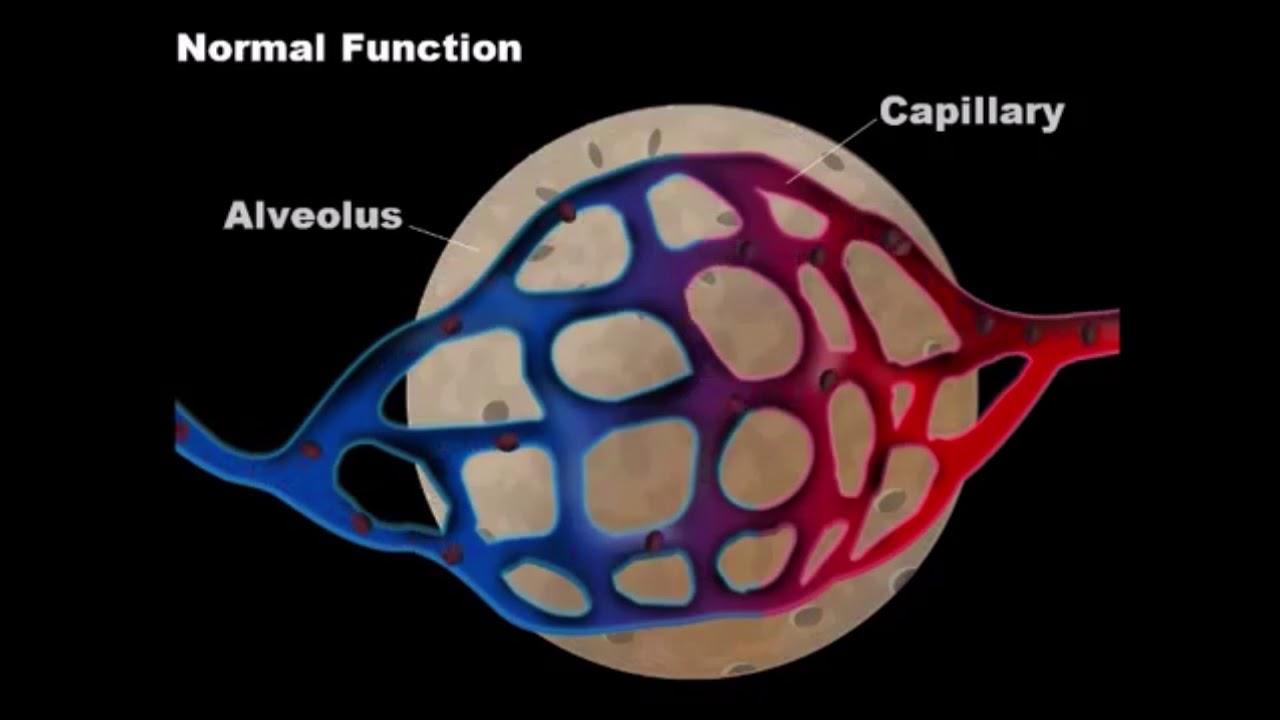 Buceo con embolia gaseosa arterial cerebral