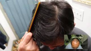 Best Testimonial for Hair Transplant – 3200 FUE Grafts – HDC Hair Clinic