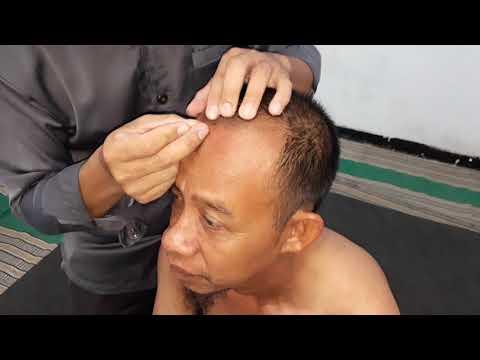 Terapi Akupuntur di Bagian Kepala