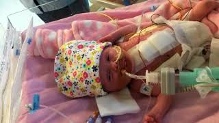 Miracle baby born with heart outside body
