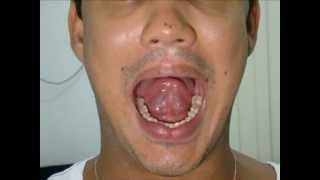 Sangue pode varizes inchar alendronato causar com