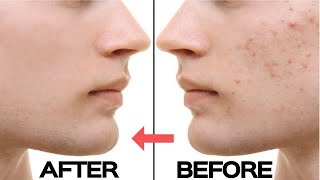 How To Stop Pimples & Acne FAST -  Mens Clear Skin Hacks 2019 #Spon