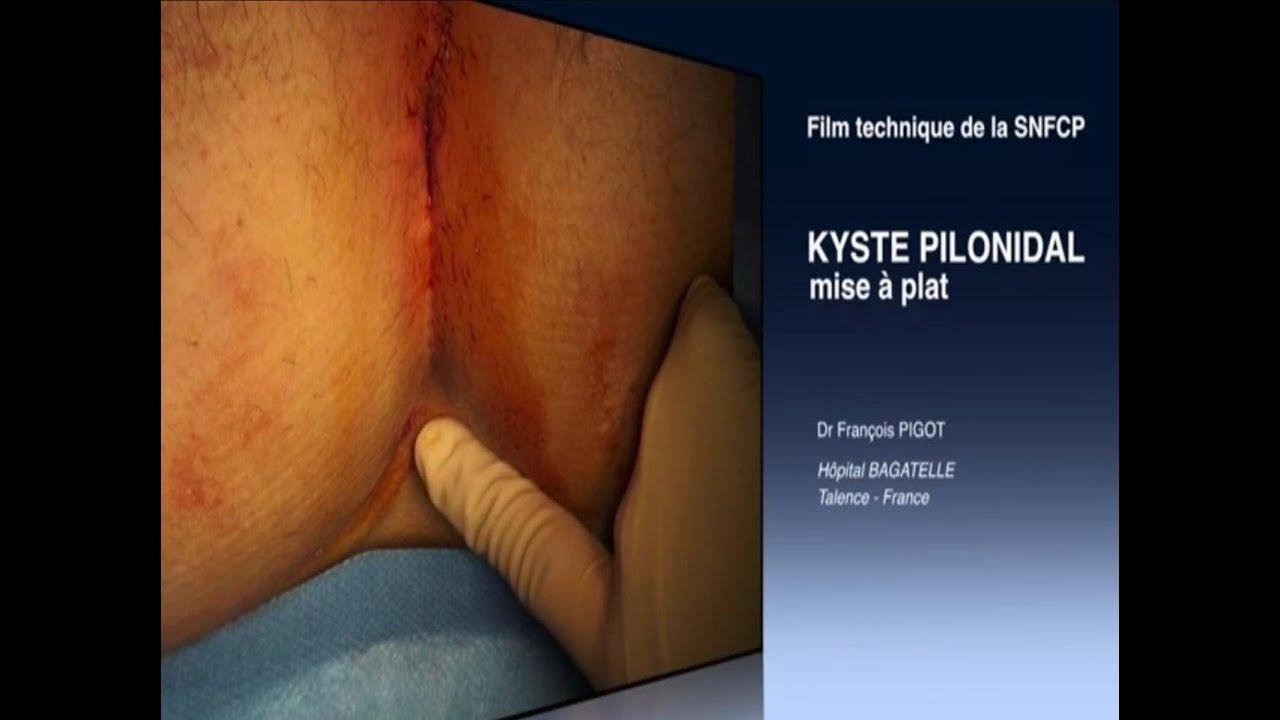 Fissure anale - Ameli, le site de l'assurance maladie en ligne