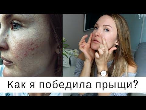 Как вылечить гормональные прыщи на лице