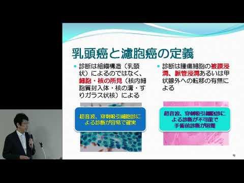 甲状腺がん 甲状腺がんの最新の診断と治療について