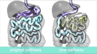 Loop Duodenal Switch Info Video