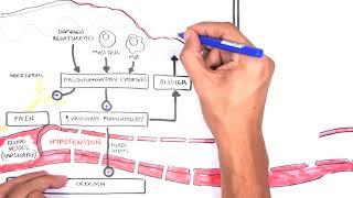 Burns - Pathophysiology