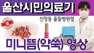 울산 시민의료기 미니뜸(쑥뜸) 영상