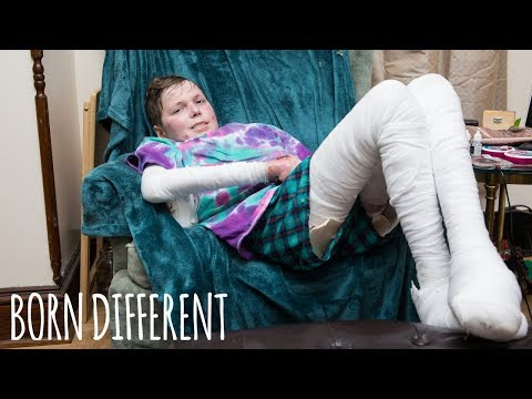 Teenager With Butterfly Skin Inspires Others | BORN DIFFERENT