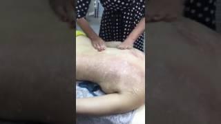 Медовый с солью массаж