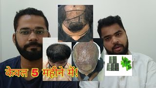 Best Hair Transplant Result in 5 Month - Hair Transformation Video