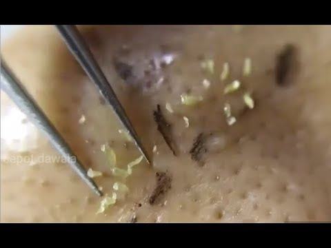 Blackheads And Whitehead Extraction On Face