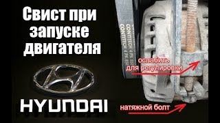 При запуске двигателя свист писк Hyundai (Хендай)
