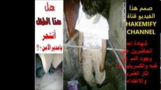 اغتصاب وشنق طفل يمني بعتز سفيان العديني(جريمه  بحق اليتيم)يتيم الاب