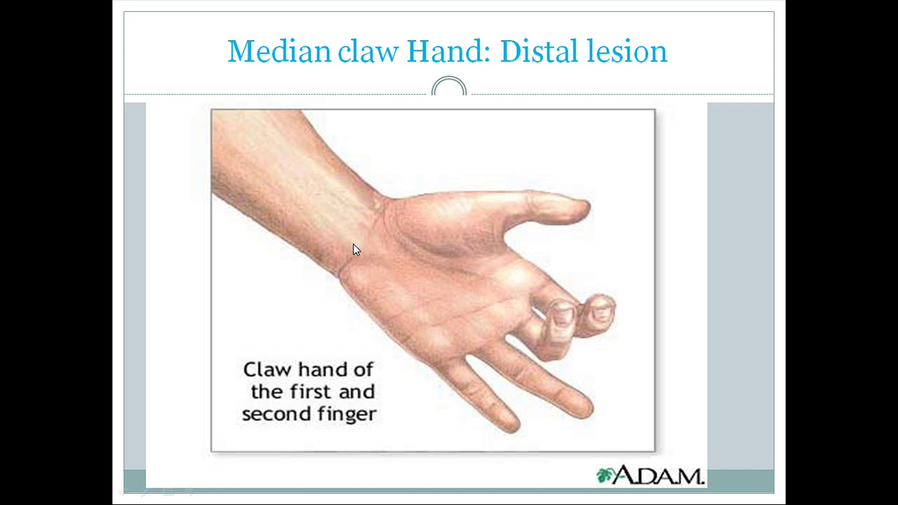 Clinical anatomy of Median nerve - YouTube