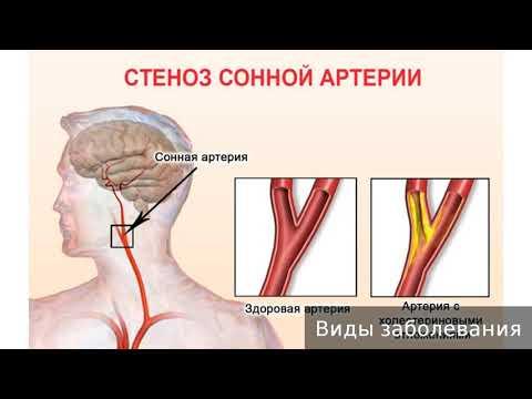 Сонная артерия на шее болит